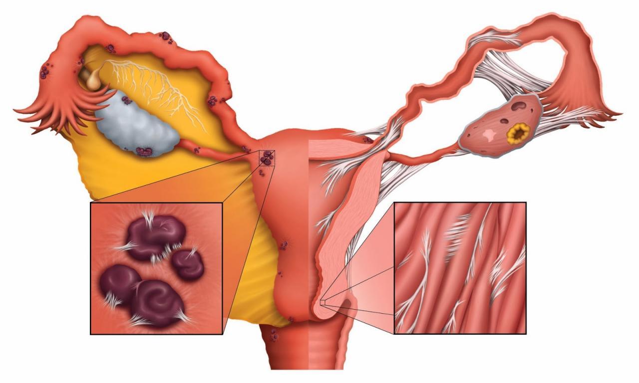 صورة اعراض بطانة الرحم المهاجرة , مرض موجود بجسمك ولا تعرفه