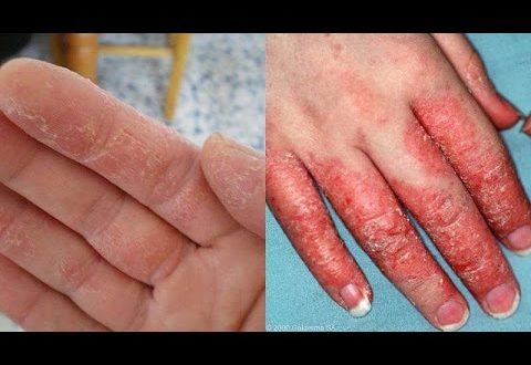 صورة علاج طبيعي للاكزيما , عالج الاكزيما من مطبخك