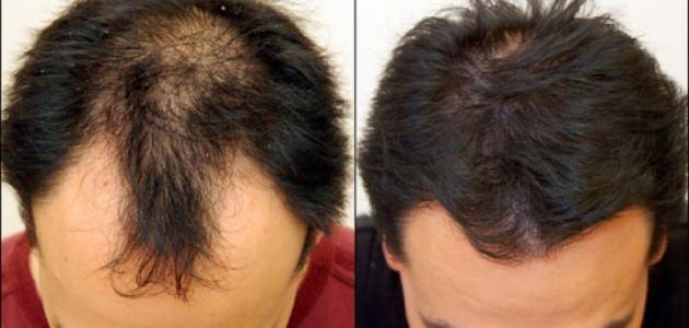 صور علاج تساقط شعر الرجال , وداعا للصلع عند للرجال