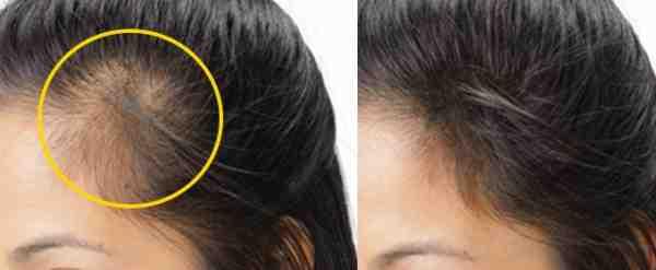 صورة السدر لانبات الشعر , افضل نبات للتخلص من الصلع