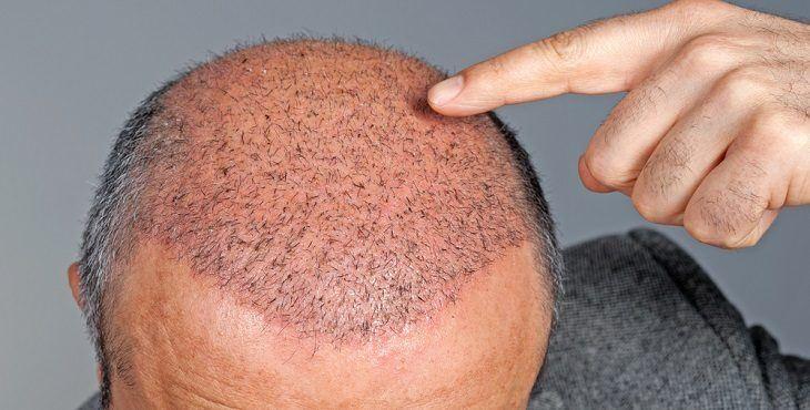 صورة متى تثبت البصيلات بعد زراعة الشعر , اختراعات حديثه للتخلص من الصلع