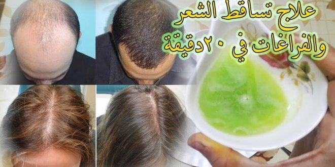 صور حل مشكلة تساقط الشعر عند الرجال , وداعا لصلع الرجال