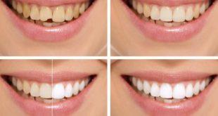 صور كيف ابيض اسناني , اضحكي باستمرار ووداع للكسوف
