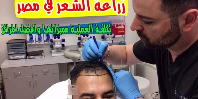 صورة تكلفة زراعة الشعر في السعودية , وداعا للصلع من الان