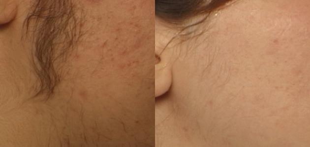 صور تقليل نمو الشعر بعد الحلاوة , اقضي علي ظهور الشعر بعد تنظيف جسمك