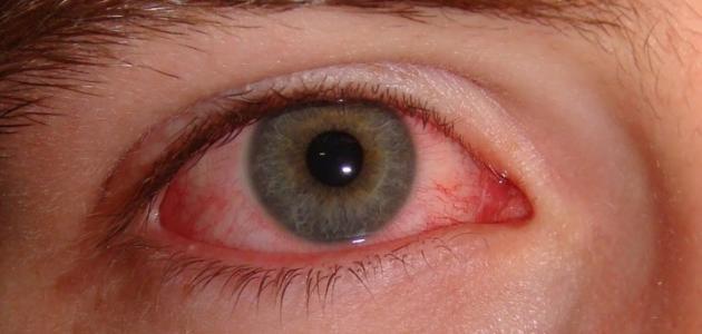 صور علاج العين الملتهبة , اسباب و اعراض التهابات العين