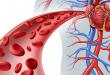صور اعراض قوة الدم , ما هو ازدياد حجم الدم فى الجسم وما هى اسبابه
