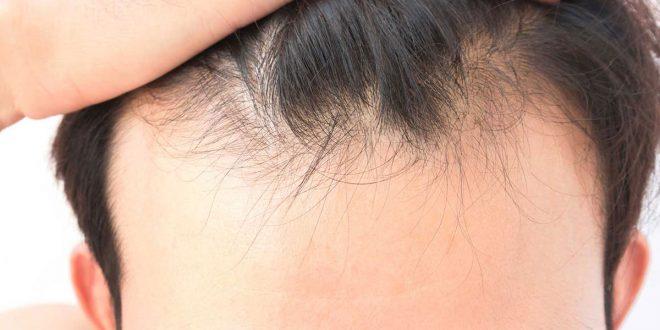 صورة الحل لتساقط الشعر عند الرجال , علاج تساقط شعر للرجال