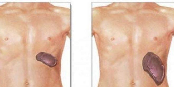 صورة اعراض انتفاخ الكبد , علاج تضخم الكبد