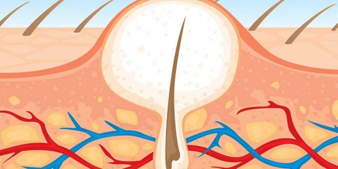 صورة كيفية ازالة الشعر بالشمع من المناطق الحساسة , ازالة الشعر من مناطق الحساسة