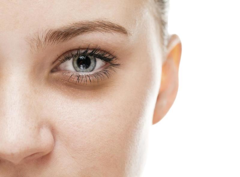 صورة علاج السواد تحت العين , اسباب ودواء الهالات السوداء