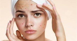 صور علاج حبوب الوجه الحمراء , اسباب الحبوب الحمراء و مداواتها