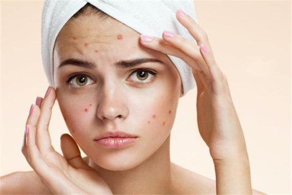 صورة علاج حبوب الوجه الحمراء , اسباب الحبوب الحمراء و مداواتها