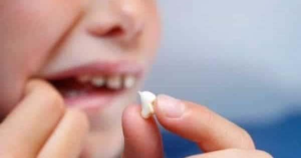 صورة تفسير حلم خلع الاسنان باليد , ما وارء خلع الاسنان باليد فى المنام