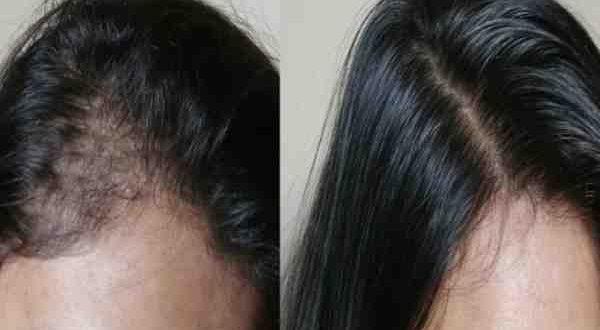 صورة اقوى زيت لتكثيف الشعر , تعرف علي اكثر زيت يكثف الشعر بسرعه جدا