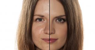 صورة طريقة تنظيف البشرة الدهنية بالبيت , تخلصي من البشرة الدهنية بطرق بسيطة