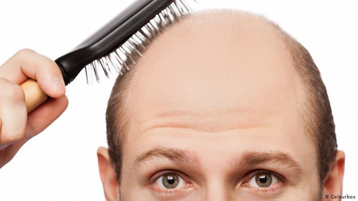 صورة اقوى علاج لتساقط الشعر , تخلصي من تساقط الشعر بطرق طبيعية