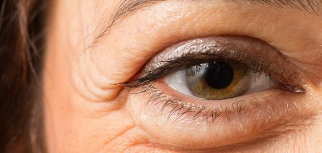 صورة اسباب انتفاخ تحت العين المفاجئ , خطر انتفاخ العين