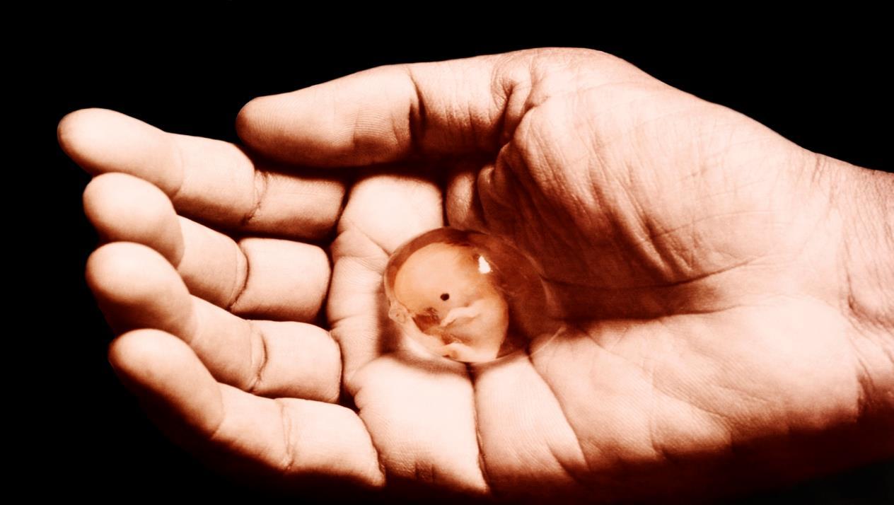 صورة تفسير الاجهاض في الحلم للامام الصادق , الاجهاض فى منامك ماذا يدل وتفسير الامام الصادق
