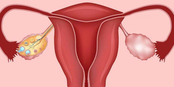 صورة اسباب تكيس المبايض عند النساء , تكيس المبايض واسبابه وكيغيه علاجه