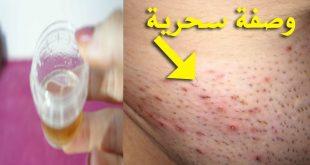 صورة علاج حبوب المنطقة الحساسه بعد الحلاقه , العلاج الفورى السحرى لحبوب ما بعد الحلاقه