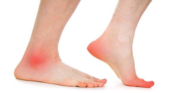 صورة اعراض جلطة الساق , علامات الاصابه بالجلطات