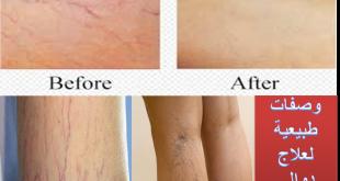 صورة علاج دوالي الساقين بالاعشاب , ثالثا وصفات للقضاء على الدوالى