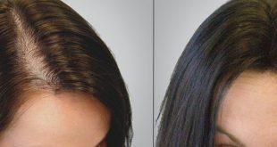 صورة تكلفة زراعة الشعر في مصر 2019 , اخلص من كابوس الصلع المبكر