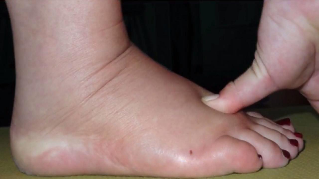 صورة علاج تورم القدمين لمريض السكر , اربع وصفات سحرية لتخلصك من تورم القدم