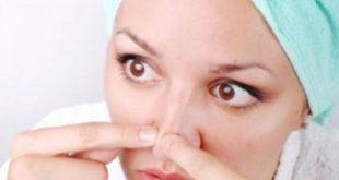 صورة علاج حبوب الانف , علاج سحرى لمشاكل بشرتك