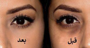 صورة التخلص من السواد حول العين , السواد المحلق حول العين وكيفيه التخلص منه