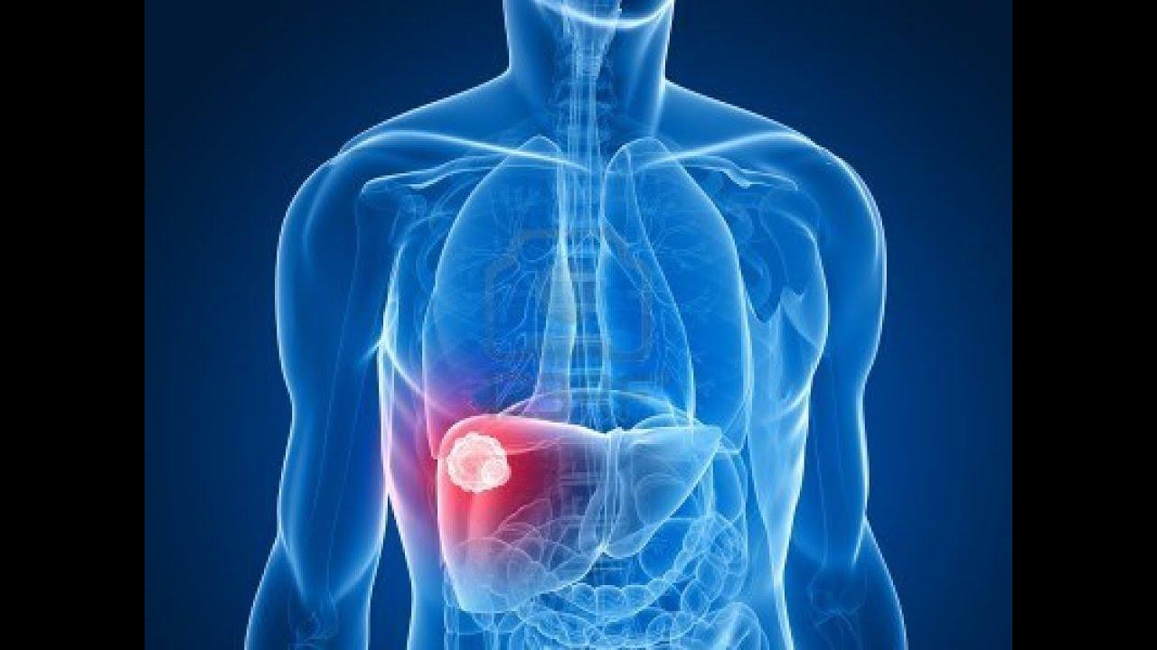 صورة اسباب مرض الكبد , ما الاشياء التى تتلف الكبد