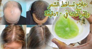 صورة حل مشكلة تساقط الشعر , الحل السحري لمنع تساقط الشعر