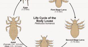 صورة علاج قمل الجسم بالاعشاب , قمل الجسم اخطر من قمل الشعر