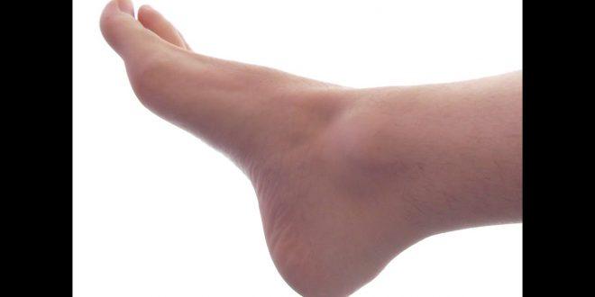 صورة تفسير حلم جرح القدم اليمنى , الجرح فى المنام ورؤيه الدم