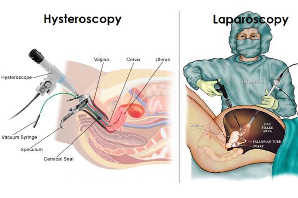 صورة منظار الرحم قبل الحقن المجهري , تعرفى على خطوات الحقن المجهرى والمنظار 700 2