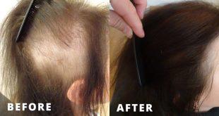 صورة لتقوية الشعر وتكثيفه , تمتعى بالمظهر الصحى لشعرك بمساعدة الطبيعة