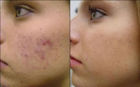 صورة علاج النقط السوداء في الوجه , الحل المثالى لبشرة صافية وناصعة البياض