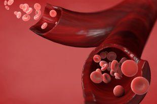صورة اسباب ارتفاع كريات الدم الحمراء في البول , الاعراض و التشخيص 6795 3 310x205