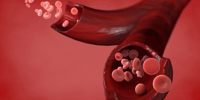 صورة اسباب ارتفاع كريات الدم الحمراء في البول , الاعراض و التشخيص